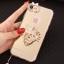 (025-979)เคสมือถือไอโฟน Case iPhone7/iPhone8 เคสนิ่มซิลิโคนใสลายหรูติดคริสตัล พร้อมแหวนเพชรวางโทรศัพท์ และสายคล้องคอถอดแยกสายได้ thumbnail 16
