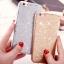 (025-989)เคสมือถือไอโฟน Case iPhone7/iPhone8 เคสนิ่มพื้นหลังลายวิ้งค์ Glitter แบบมีแหวนมือถือ/ไม่มีแหวนมือถือ thumbnail 4